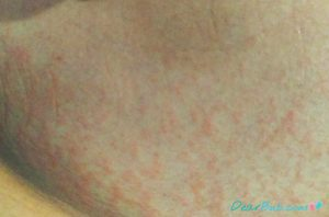 dermatitis during pregnancy_dearbub.com