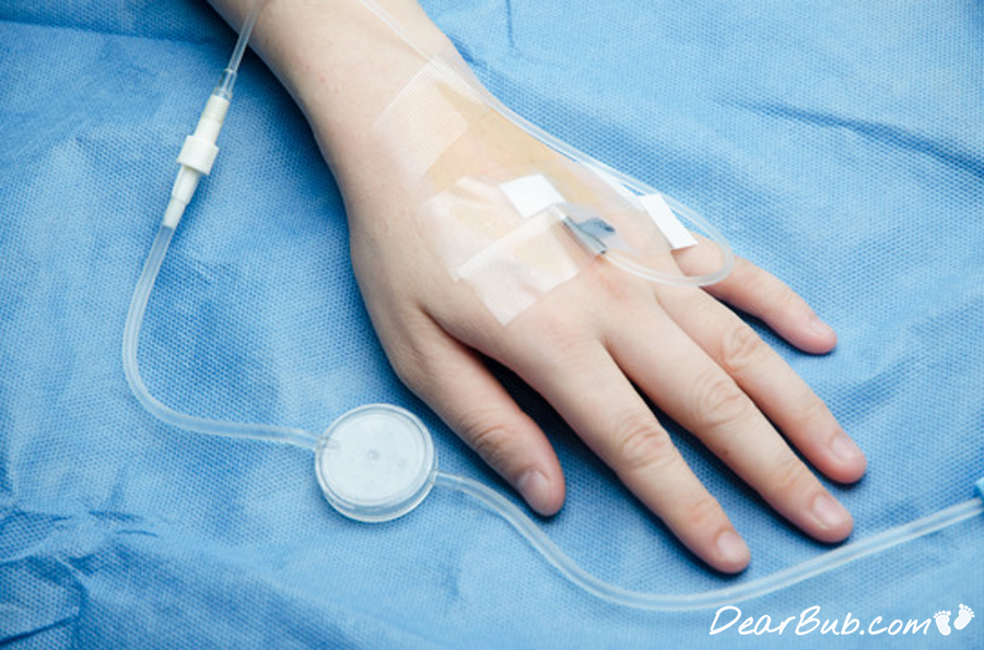 IV Iron Infusions During Pregnancy